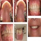 تعمیر دندان مصنوعي شكسته